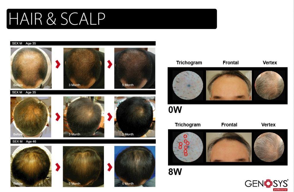 Mikrojehličkování vlasové pokožky Genosys